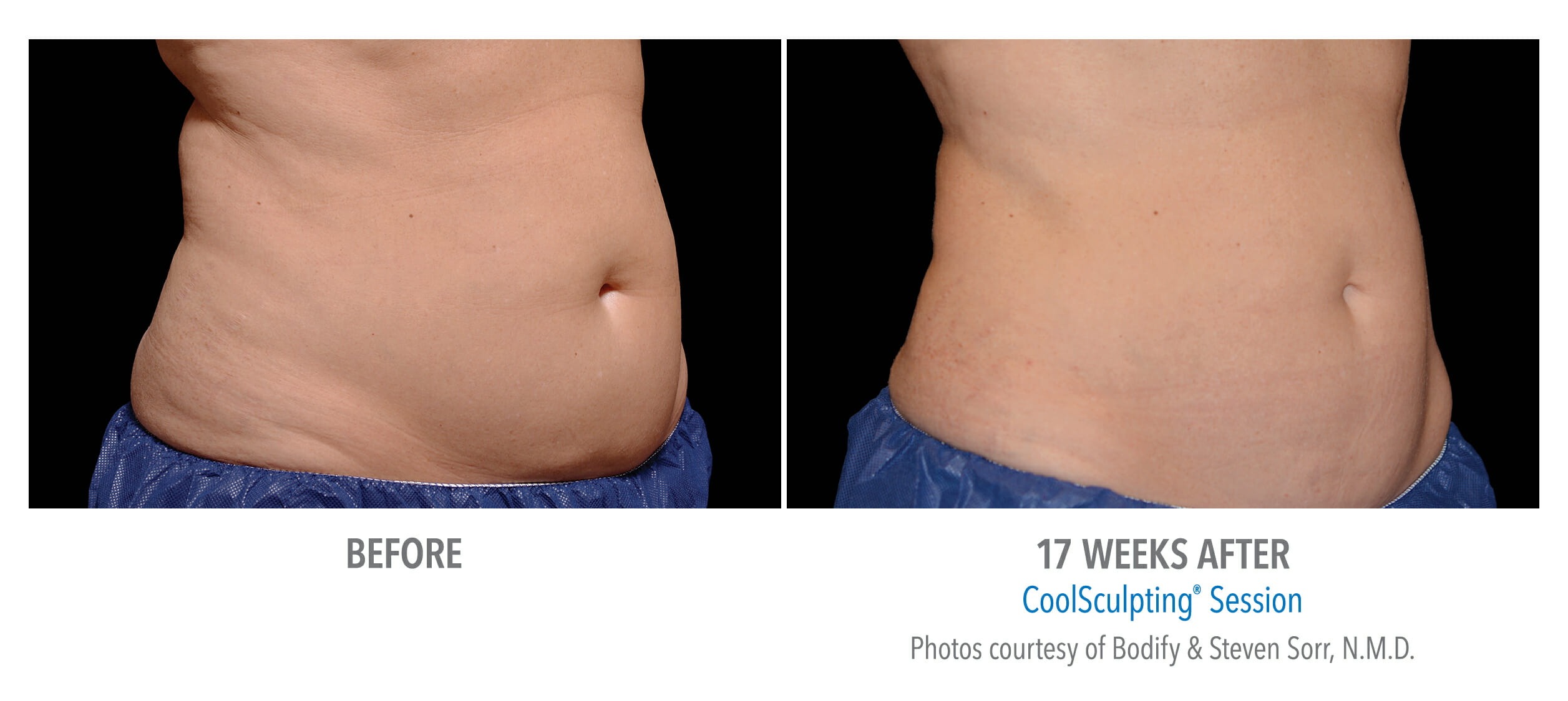 before after women belly